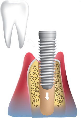 Dental implants procedure remove tooth and place implant in bone