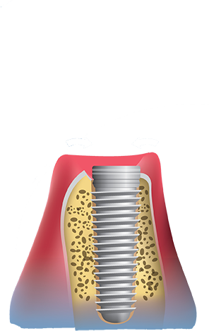Dental implants procedure place implant in bone