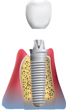 Dental implants procedure place crown on implant