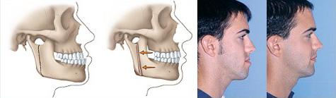 Orthognathic surgery - protruding jaw