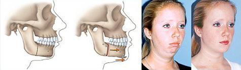 Retrognathic mandible