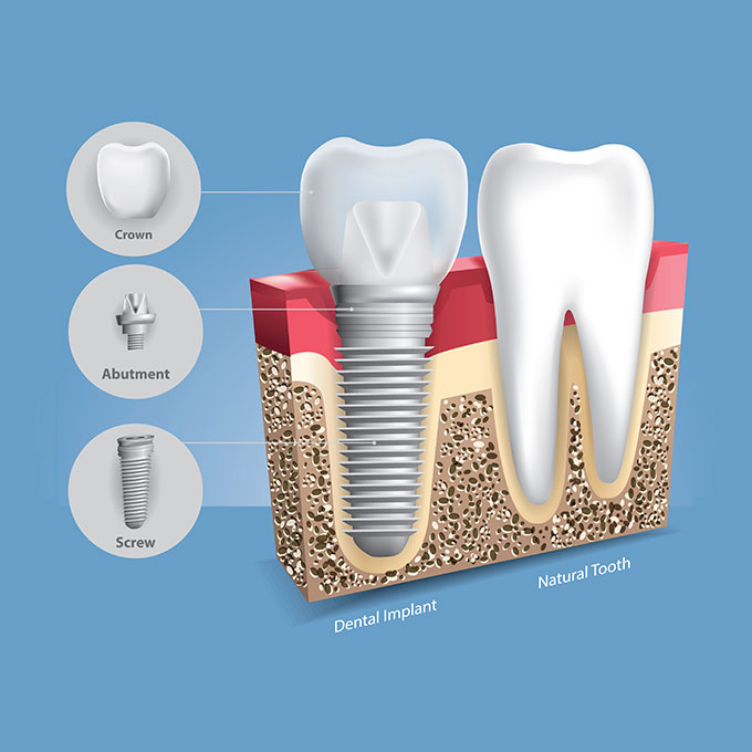 Dental Implants vs Natural Teeth