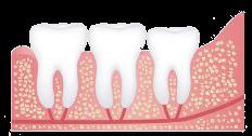Normal Dental Eruption