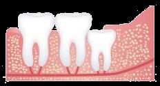 Vertical Dental Impaction