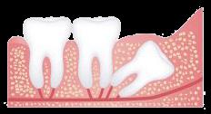 Distal Dental Impaction